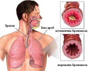 vidove_bronhialna_astma