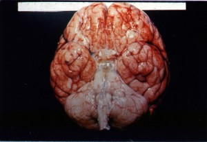Chronic Meningitis_BRAIN