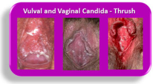 Vulval-and-Vaginal-Candida-Thrush