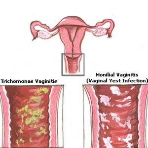 yeast-infection-during-pregnancy