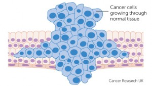 cancer-cells-growing-through-normal-tissue